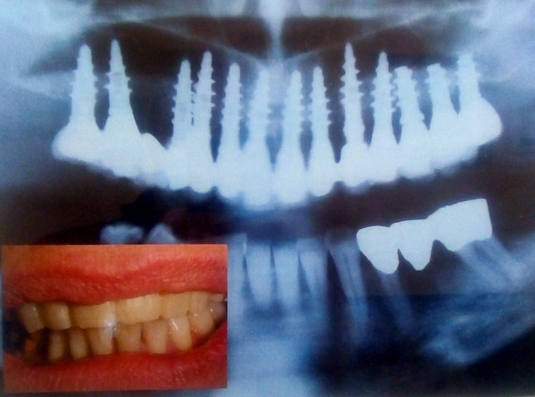 radiografia di protesi dentali